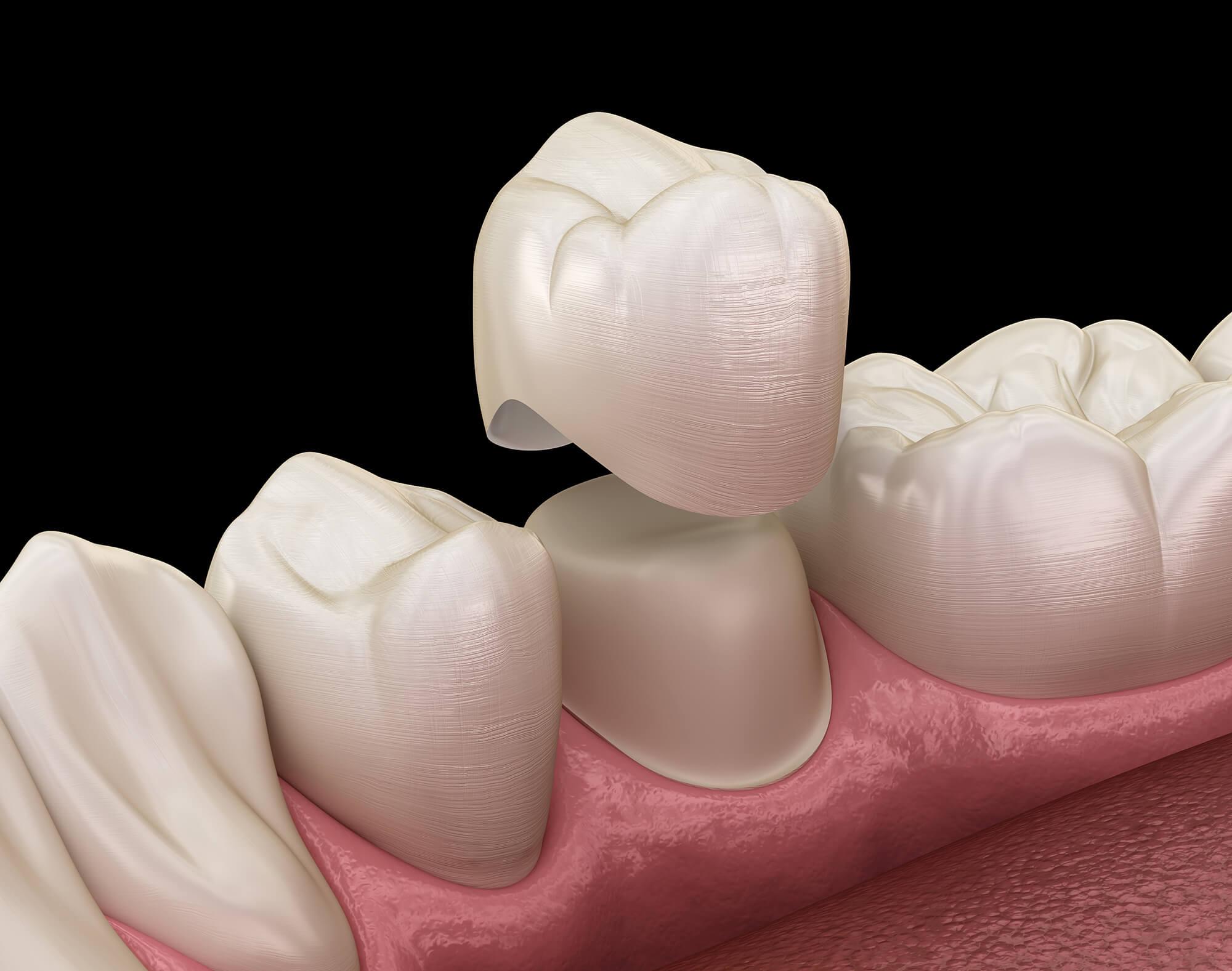 bridges dentiste cannes