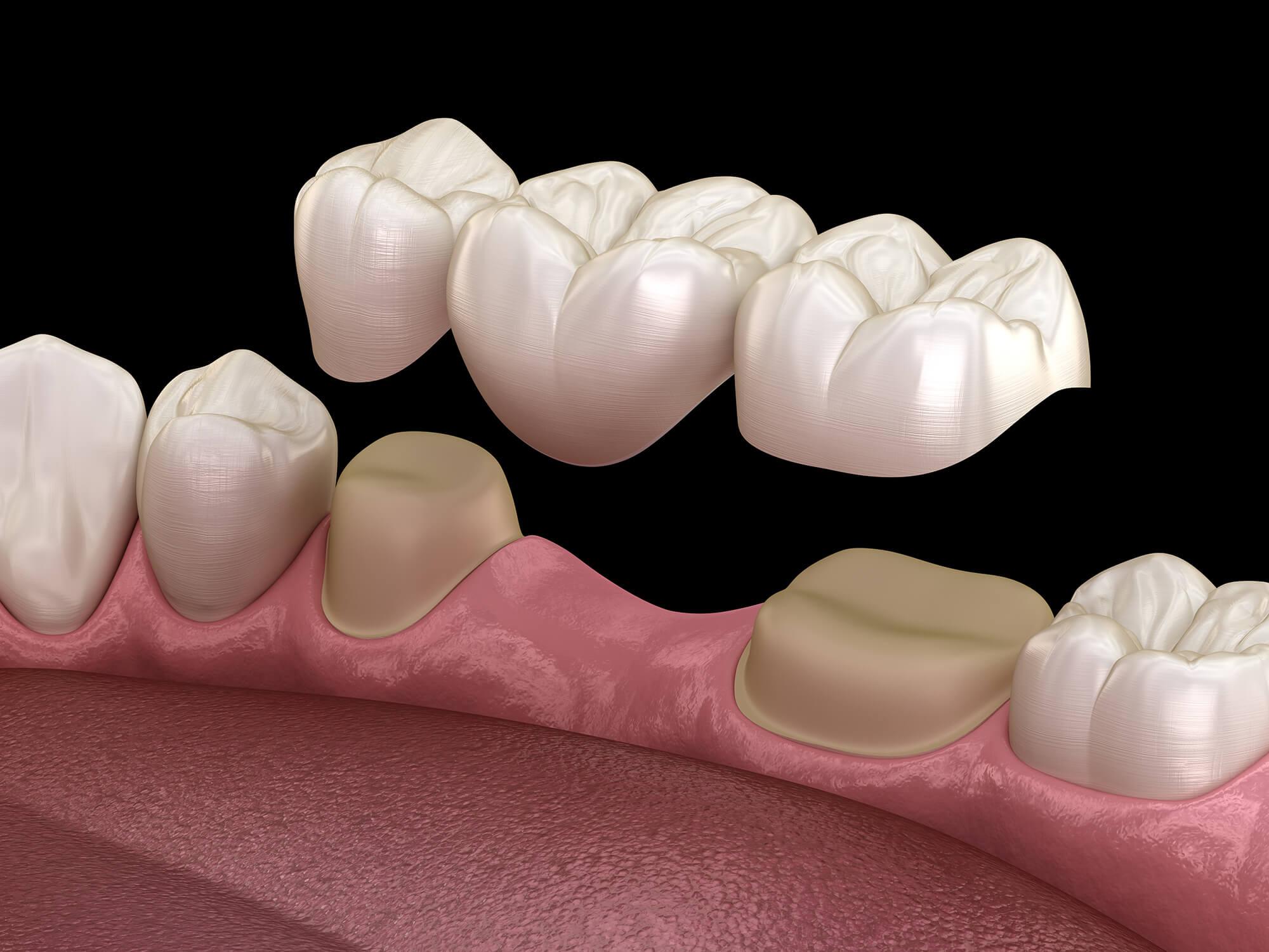 couronnes dentiste cannes
