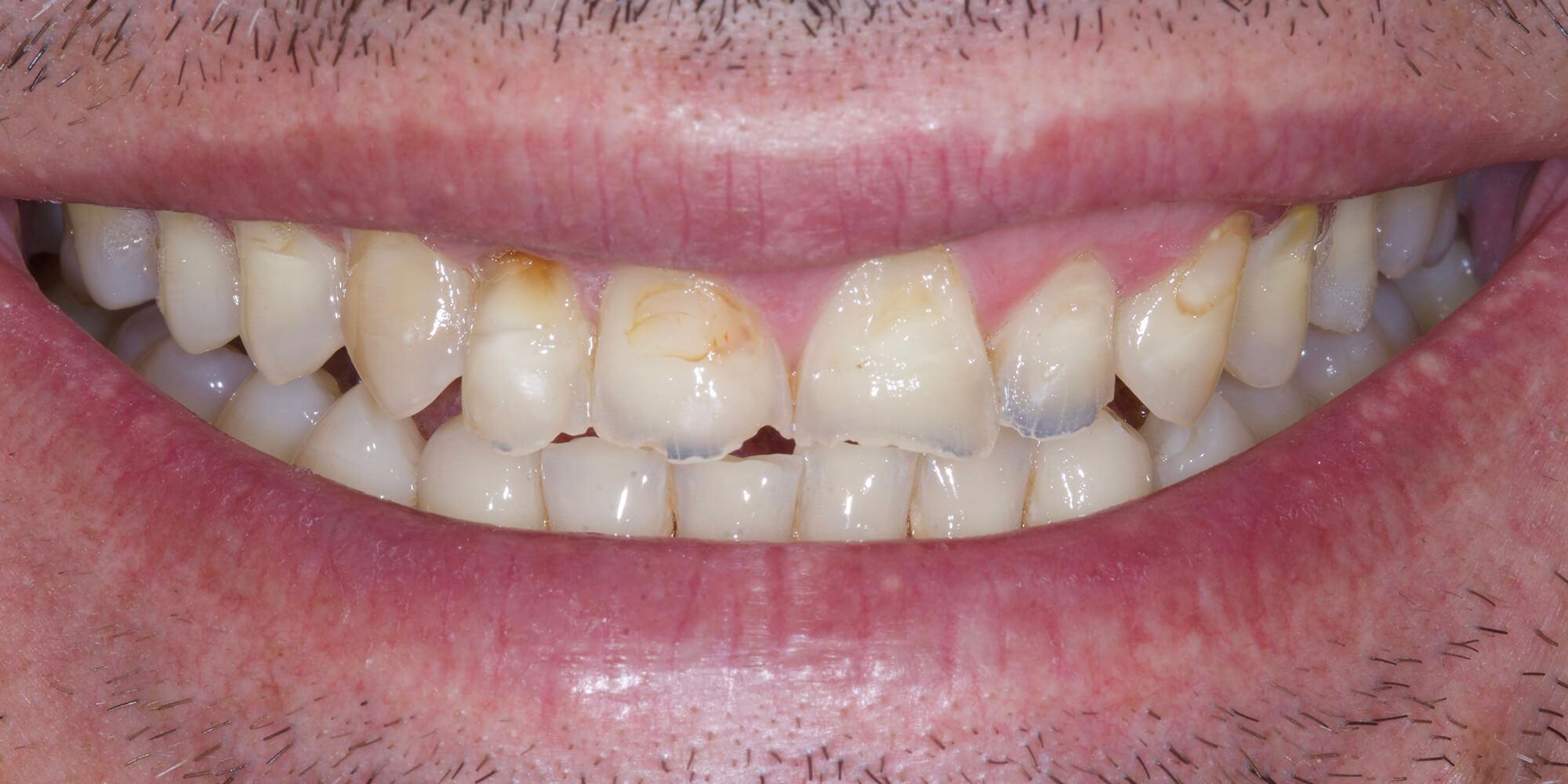 facettes dentaire cannes