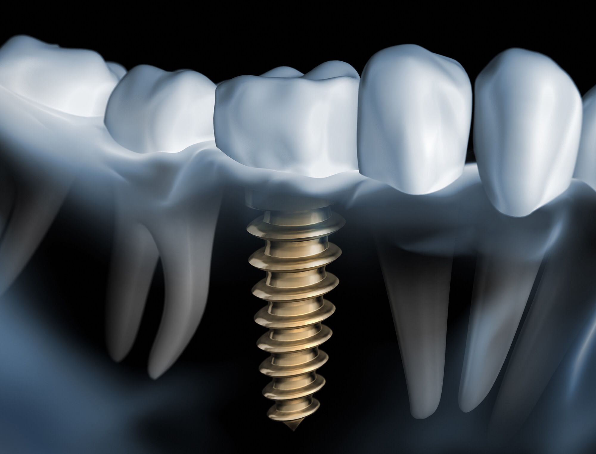 implant dentaire cannes